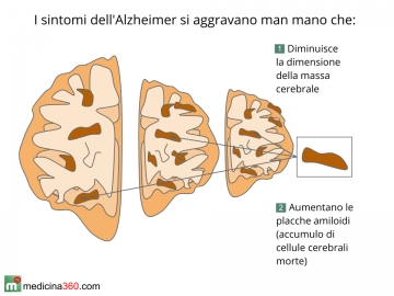 Sintomi del morbo di Alzheimer
