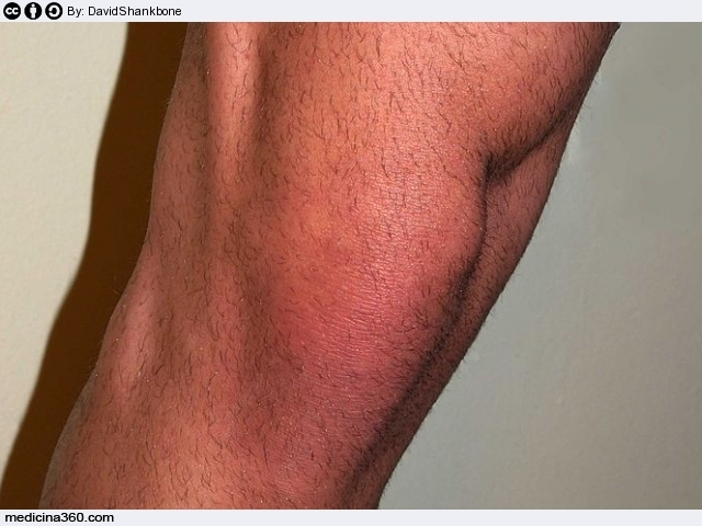 Artrosi al ginocchio: sintomi, cause e terapia della gonartrosi