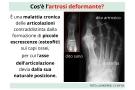 Artrosi deformante: sintomi, cure, rimedi naturali e prevenzione