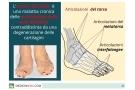 Artrosi del piede: sintomi, esercizi, cure e rimedi naturali