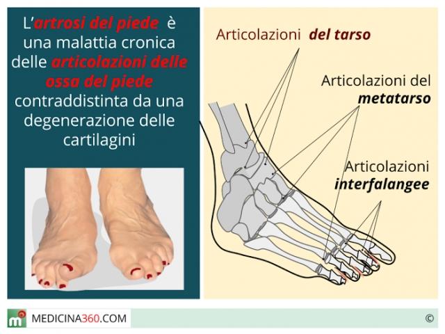 Artrosi: rimedi naturali
