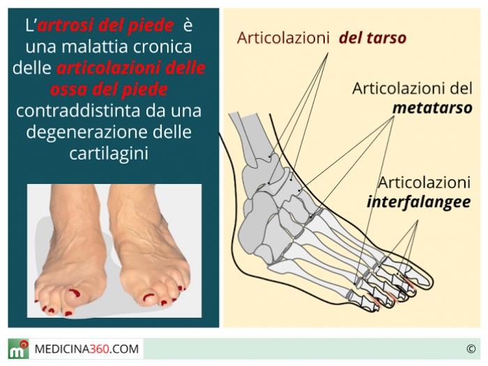 Sintomi Artrite