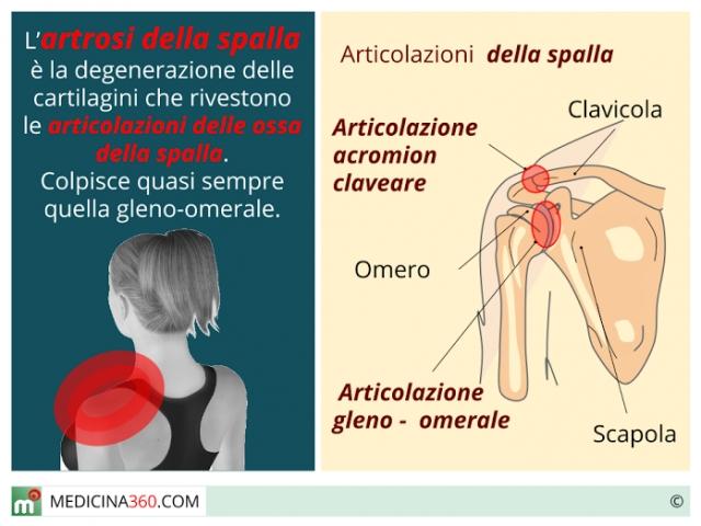 Meccanismi di formazione di trombosi