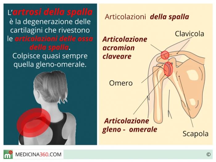 artrosi promote e rimedi