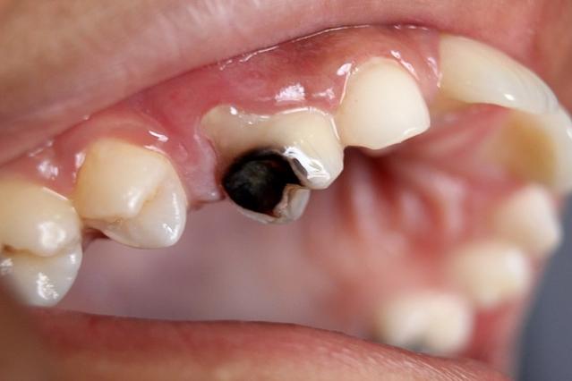 Carie dentaria: cause, sintomi, cure e rimedi naturali