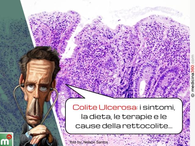 Colite ulcerosa: sintomi, dieta, terapia e cause della rettocolite