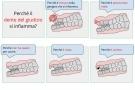 Dente del giudizio: dolore, infiammazione, ascesso ed estrazione