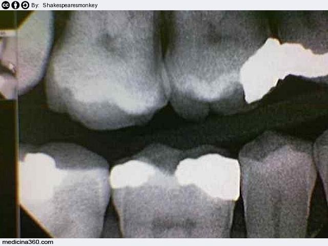 Denti sensibili