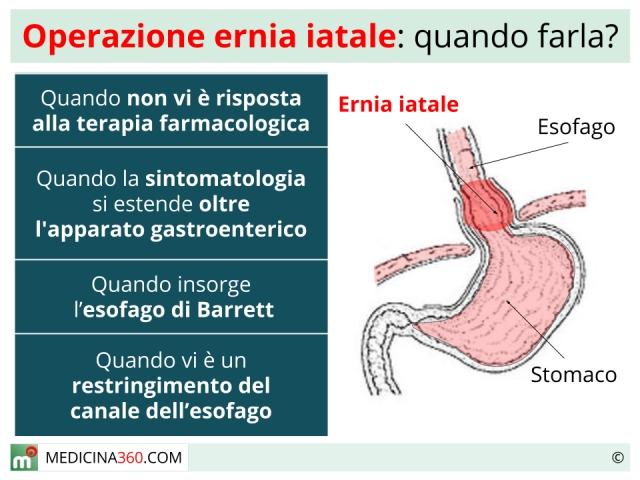 Ernia iatale operazione: quando farla? Rischi e tecniche di intervento