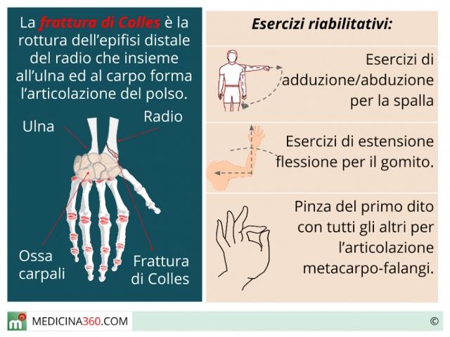 Frattura di Colles: riabilitazione. Esercizi, fisioterapia, trattamenti e tempi di recupero