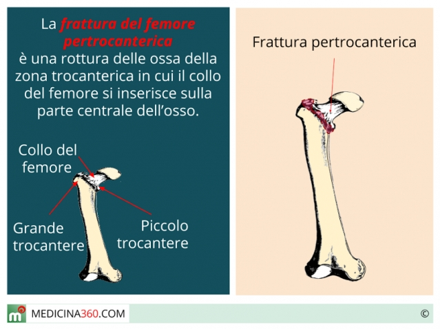 Frattura femore pertrocanterica: sintomi, riabilitazione e complicanze