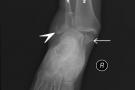 Frattura malleolo tibiale: tipi, sintomi, e riabilitazione