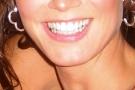 La bellezza dei denti