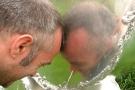 Mal di testa: cause e rimedi per cefalee forti, continue, con aura ecc