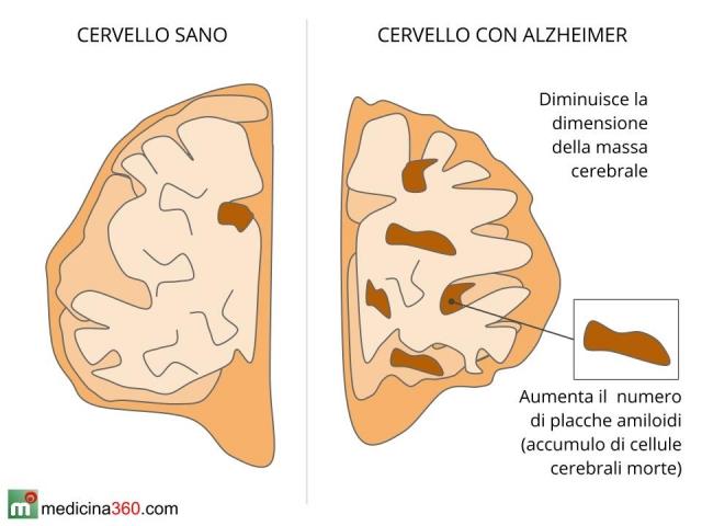 Morbo di Alzheimer: caratteristiche, cause, diagnosi  e fasi della malattia