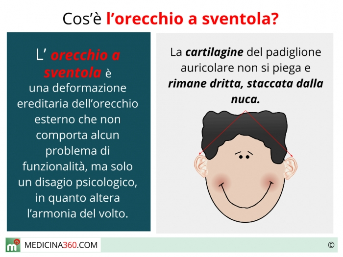 Orecchie a sventola cause intervento e rimedi naturali for Orecchie a sventola rimedi naturali per adulti