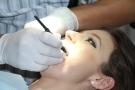 Otturazione dente: come si fa? Costo, materiali e procedura