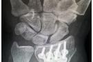 Riabilitazione frattura polso