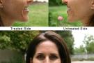 Riempimento rughe del viso