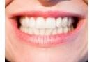 Rinforzare denti e gengive