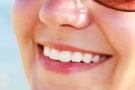 Sbiancamento dei denti: fai da te o dal dentista; pro e contro, costo e foto