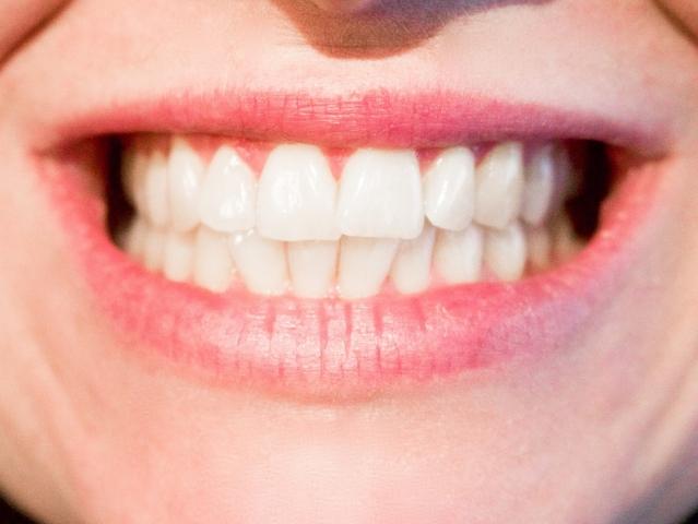 Sbiancante per denti: prodotti, tecniche e costi