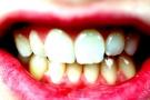 Tartaro: cause, prevenzione, rischi ed ablazione dei denti per eliminare il problema