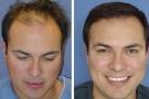 Tecniche di trapianto dei capelli