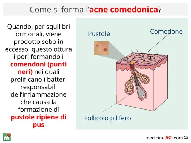 Argilla per la persona a eruzione di acne
