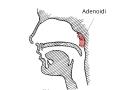 Pericardite sintomi cause e terapia per l 39 infiammazione for Orecchie a sventola rimedi naturali per adulti