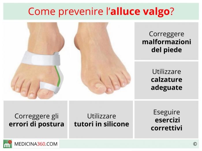 Valgo Valgo Ed Ed PrevenzioneTutoreScarpe Valgo Alluce Esercizi Esercizi PrevenzioneTutoreScarpe Alluce Alluce PrevenzioneTutoreScarpe Ed wZkOPXiTul