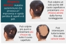Alopecia areata: cause e cure. Maschile, femminile e nei bambini