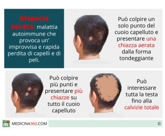 Lo shampoo vichingo contro una perdita di capelli
