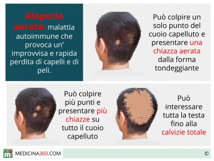 Alopecia areata  cause e cure. Maschile 96ac68e7f11b