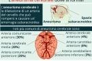 Aneurisma cerebrale: cause, sintomi, intervento, riabilitazione e conseguenze