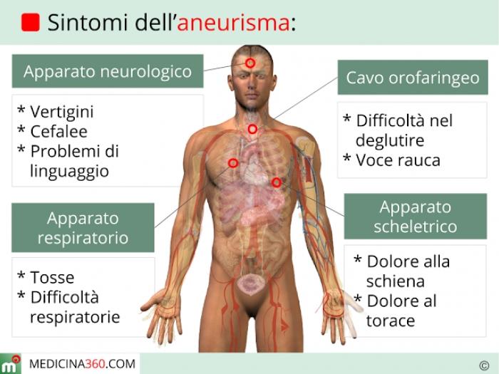 Sintomi dell'aneurisma