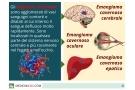 angioma cavernoso