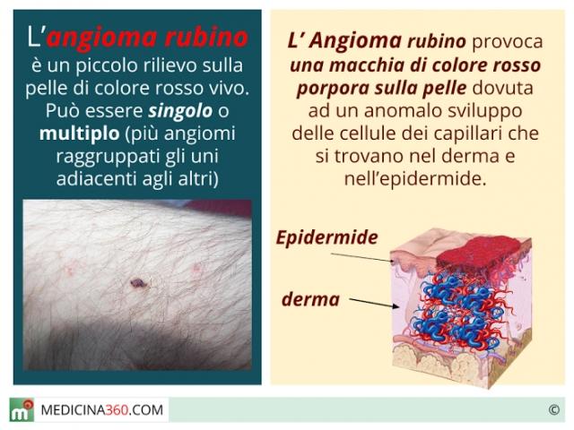 Angioma rubino