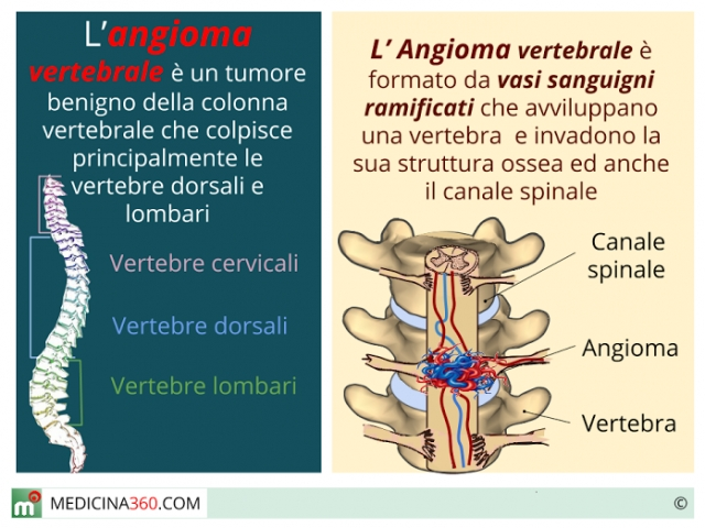 Angioma vertebrale