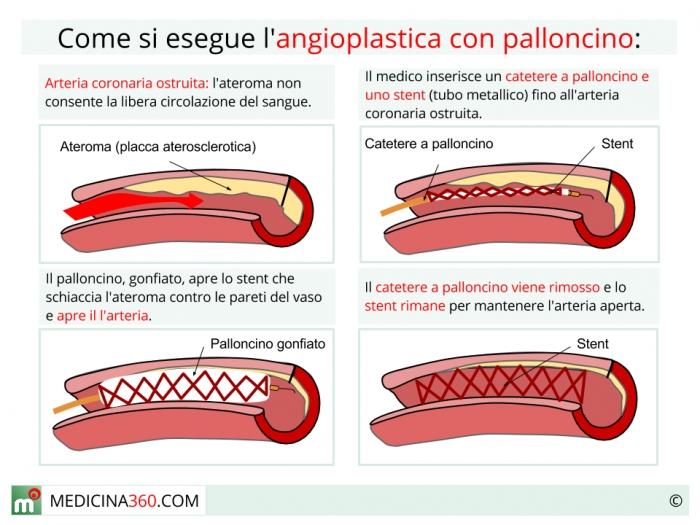 Angioplastica con palloncino