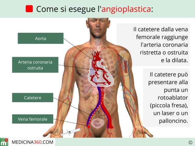 Angioplastica: procedura, rischi, convalescenza e tipi (coronarica, venosa)