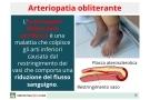 Arteriopatia obliterante: cos'è? Sintomi, stadi, cause e terapia