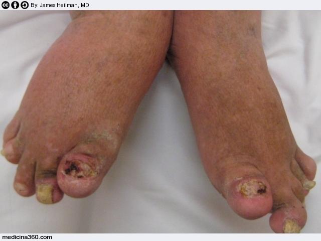 Artrite psoriasica - Bagni di paraffina alle mani ...