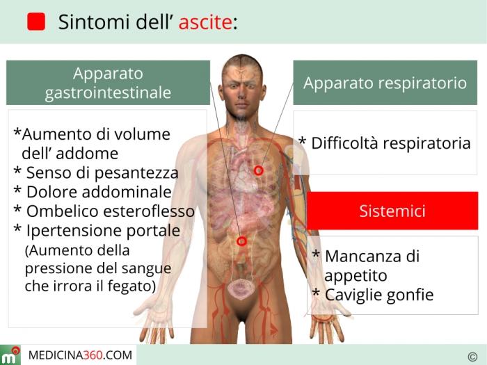 Sintomi dell'ascite