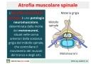 Atrofia Muscolare Spinale: tipi, sintomi, cause e cure per la sma
