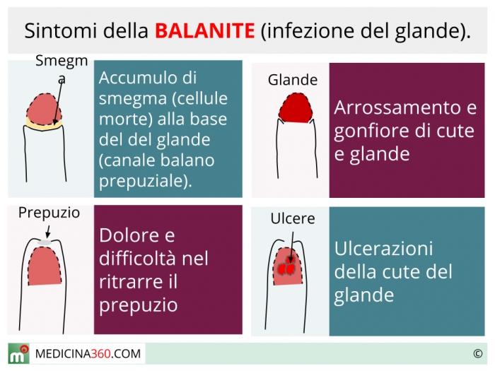 infezione micotica glande