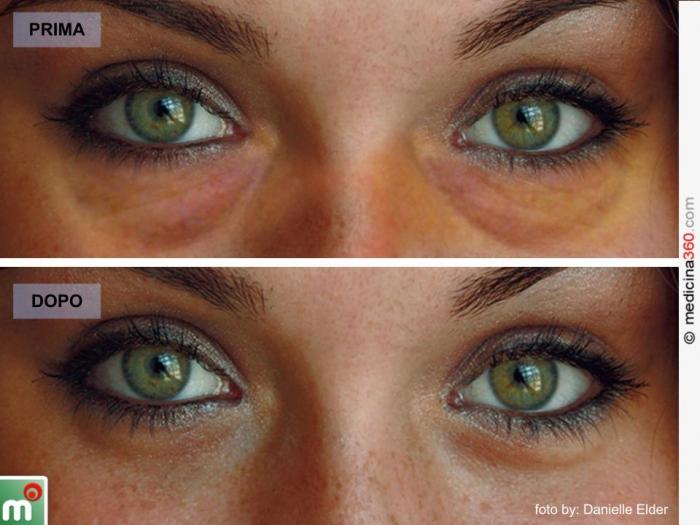 operazione borse occhi