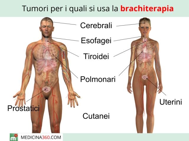 Brachiterapia: cos'è? Procedura tipi ed effetti collaterali