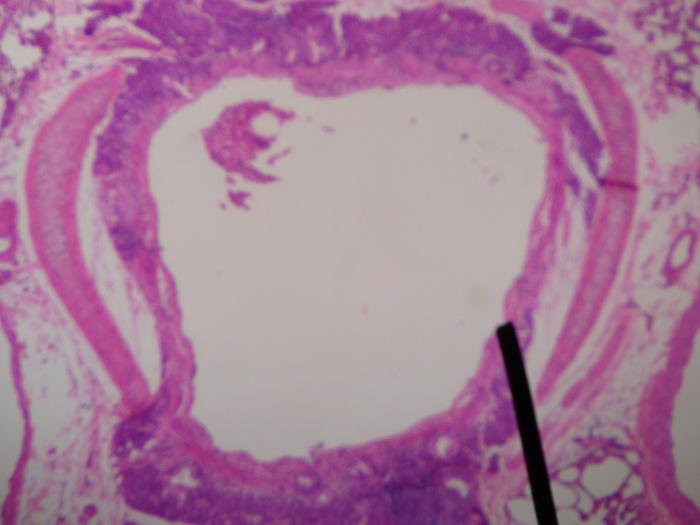 Bronchitis Acuta