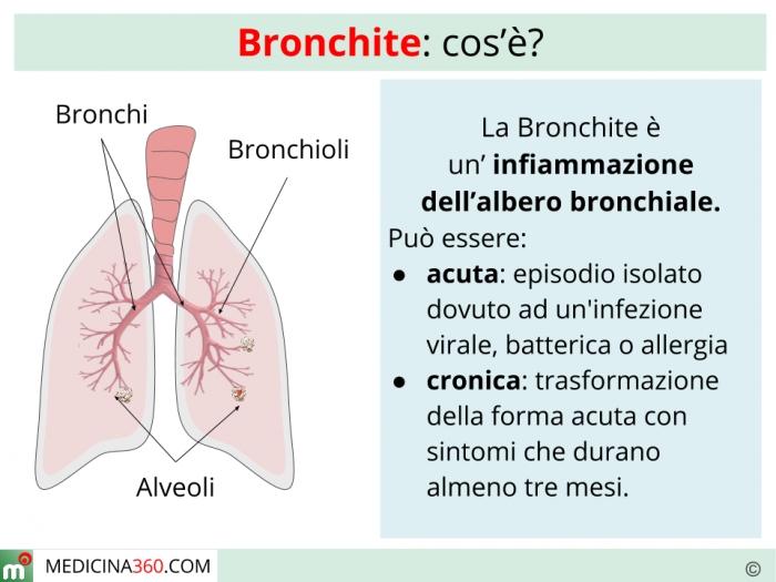 Bronchite tipi sintomi cause cure e rimedi naturali - Pagamenti diversi bnl cosa sono ...
